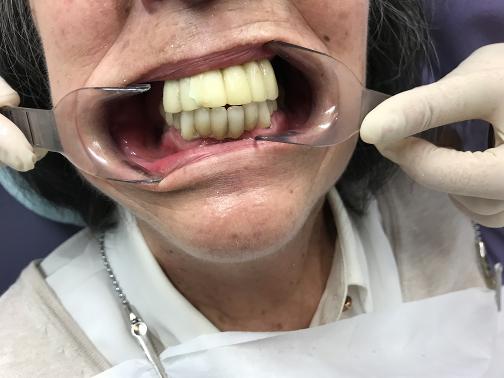 1.foto Caso Antes De Colocar Implantes
